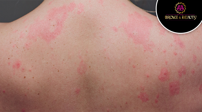 Experiencing Rashes after Waxing? This is How You Can Get Rid of Them