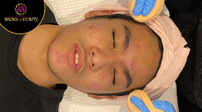 Mistakes that Might See you Taking Facial Treatment A Bit Too Frequently